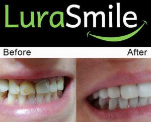 before after lurasmile 495x400 1