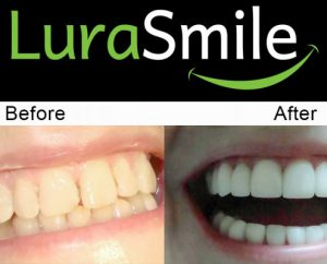 before after lurasmile2 495x400 1