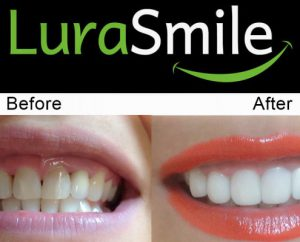 before after lurasmile3 495x400 1