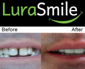 before after lurasmile4 495x400 1