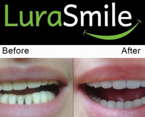 before after lurasmile5 495x400 1