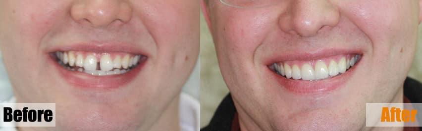 before after teeth veneers dublin