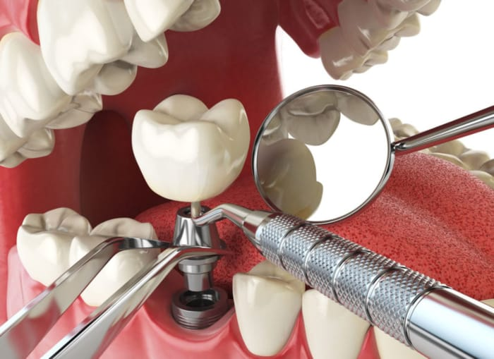 dental implant concept 825x619 2