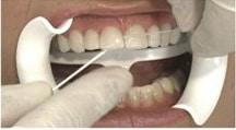 porcelain teeth veneers dubin